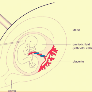 A diagram of amniocentesis. A needle is inserted into the sac surrounding the fetus to remove a sample of amniotic fluid and cells.